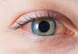 Home Remedies for Blood Shot eyes