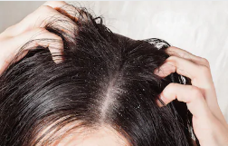 How can I get rid of Dandruff at home