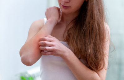How to Stop Itching Skin in Eczema